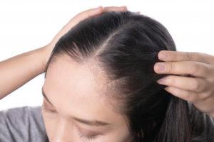 πτωση μαλλιων σε γυναικες